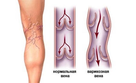 Гирудотерапия при лечении варикоза