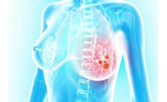 Гирудотерапия в маммологии